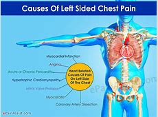 left side upper back pain in women