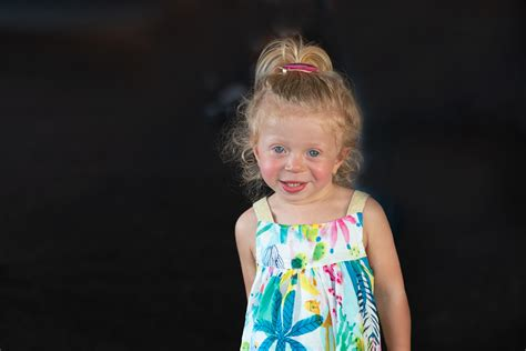 Williams Syndrome Face