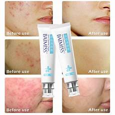sweet looks 123 baimiss acne cleaning skin care