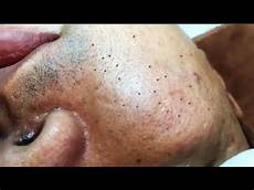 Cystic Acne Pimples And Blackheads Extraction Treatment