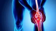 Beinschmerzen Im Liegen - schmerzgelenke der schultern und h 228 nden