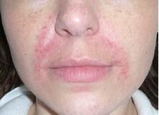 Rote Flecken Im Gesicht Durch Trockene Haut