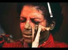 Michael Jackson Haut - did michael jackson his skin