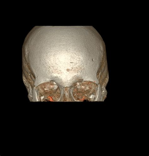 Ct Scan Gif