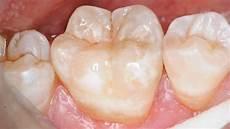piombatura denti conservativa smilife
