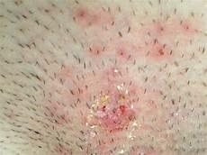 Pilzinfektion Mann Hausmittel - wunde stelle im intimbereich herpes intim