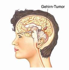 Hirntumor Symptome Auge - gehirntumor gehirntumore gliome medulloblastome