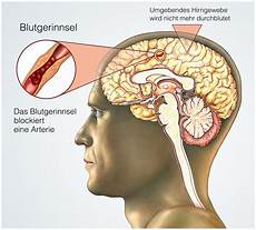 Hirntumor Symptome Auge - bewusstlosigkeit ursachen und anzeichen