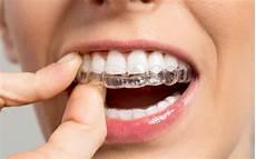 tout sur les bagues dentaires avantages inconv 233 nients