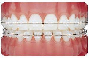 Everything You Need To Know About Clear Braces