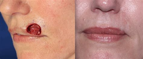 skin cancer treatment newport beach orange county ca