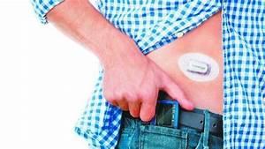 Dexcom U0026 39 S Wearable Glucose Monitors In Pilot Program For