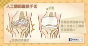 對抗退化性關節炎(懶人包) - 照護線上