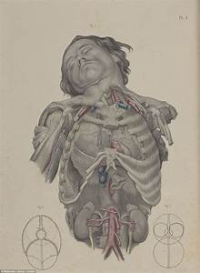 Wellcome Collection U0026 39 S Images Show The Barbaric Nature Of 19th Century Surgery