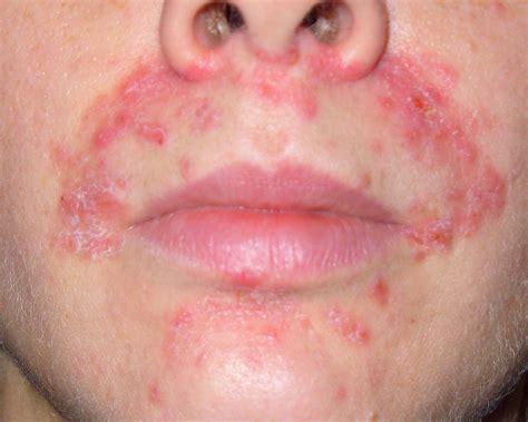 Perioral Dermatitis Causes Symptoms Treatment Perioral