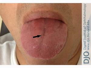 Fissured Tongue Deep Grooves In Dorsum Of Which Cause No ...