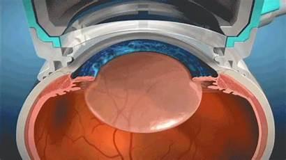 Laser Surgery Cataract Capsulorhexis Precision Femtosecond Femto