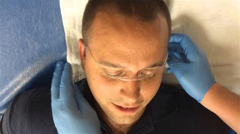Improvised Eye Irrigation with an IV Drip-Set/Nasal ...