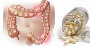 Colon irritabile : un Protocollo Efficace