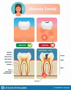 Abscess Tooth Vector Illustration  Labeled Medical Diagram