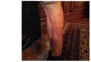 Pics of 3rd degree burns on my leg, some of the surgery ...