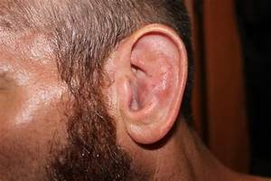 Cauliflower Ear Draining 37305 | NOTEFOLIO