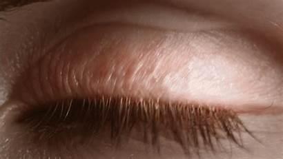 Blind Beauty Opening Eye Reflection Short Nothing
