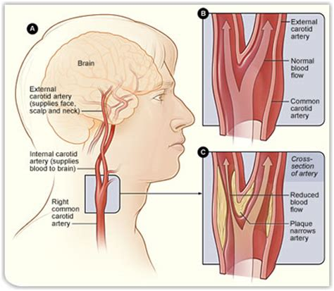 The carotid arteries are major blood vessels in the neck that supply blood to the brain, neck, and face. Carotid Endarterectomy | Stroke and Carotid Artery Surgery ...