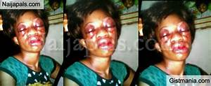 Woman Brutally Beaten By Husband In Port-Harcourt - Photo ...