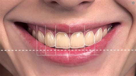 smile by design digital smile design animation