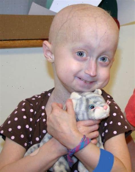 Progerie Nd
