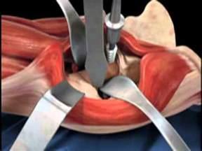 Anterior Total Hip Replacement Precautions