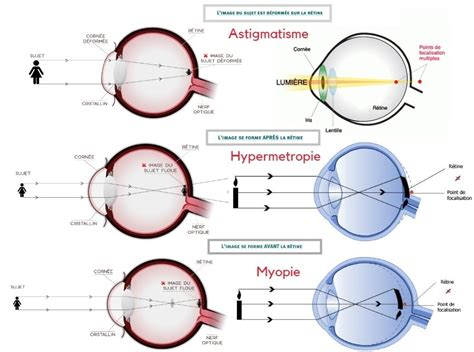 correction myopie lentille lasik tunisie traitement laser myopie hypermetropie et 188   astigmatisme myopie hpermetropie prix