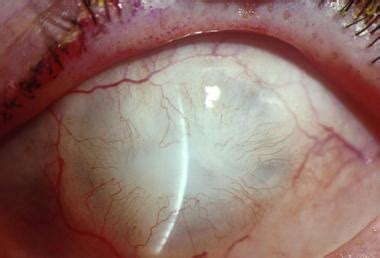 Ocular Burns and Chemical Injuries: Background ...
