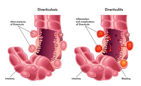 Diverticulitis Diverticulosis Singaporediverticular Disease