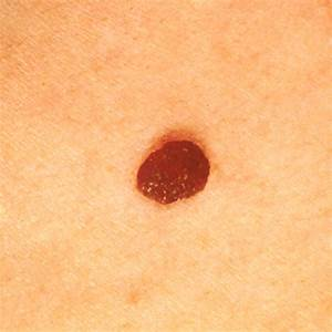 Skin Cancer Images - SkinCancer.net