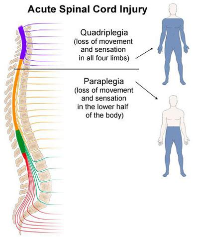 Acute Spinal Cord Compression  Notes On Medicinesurgery. Calm Down Signs. Cctv Signs. Gate Signs Of Stroke. Evil Signs Of Stroke. Breakup Signs Of Stroke. Leo Horoscope Signs Of Stroke. Minions Signs Of Stroke. Clogged Signs