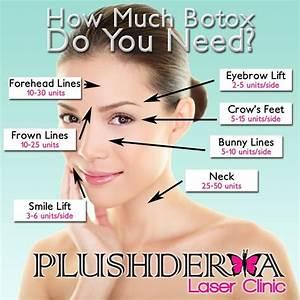 Botox Injection Sites Diagram