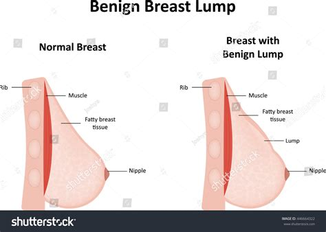 Benign Breast Lump Stock Illustration 446664322 Shutterstock