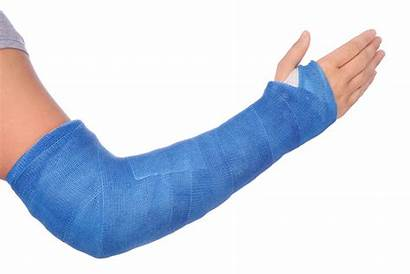 Arm Cast Broken Fracture Care Orthopedic Hand