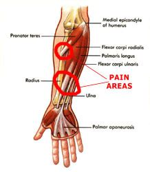 It hurts, not just when you lift or exercise, but also when you do everyday tasks, even something as basic as typing or moving the mouse on your computer. Forearm Tendonitis Information & Treatment Advice ...