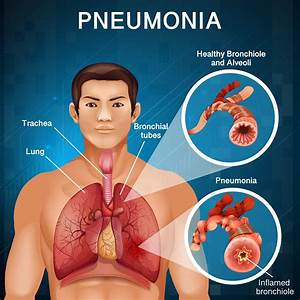 Man With Pneumonia With Bad Lungs In Human Body
