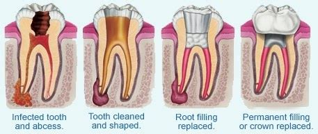 How Much Does A Root Canal Cost In Dubai?  Quora. Online Payday Loans Texas Photo Storage Cloud. Extended Auto Service Plans Hvac Franklin Tn. Online School Web Design Hud Guaranteed Loans. How Long Do Drugs Stay In Hair. Online Sports Administration Masters. Investment Banker Job Description. 5 Year Arm Interest Rates Tax Forgiveness Act. Hearton Shinsaibashi Osaka E Learning College