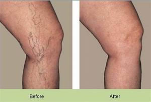 Face and Leg Veins - UK Cosmetic Clinic