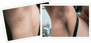 Bikini Hair Laser Removal Before After ...