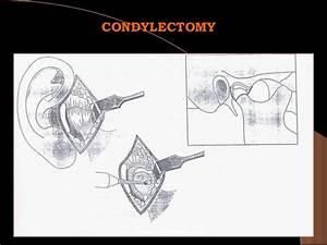 Condylectomy Tmj Pdf