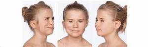 Result Of  U0026quot  Smile Surgery  U0026quot  With Frontal Facial View And