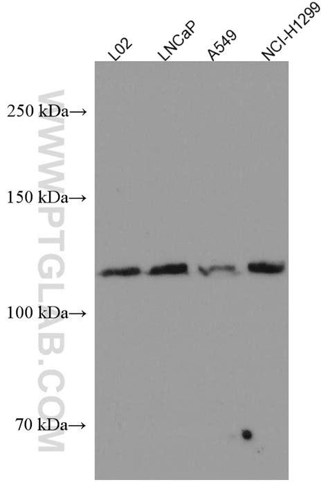 FGFR3 Antibody 66954-1-Ig | Proteintech