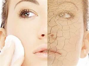 Dry Skin Care Tips At Home In Winter And Summer