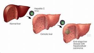Mayo Clinic Q a... Hepatitis C
